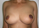 After asymmetric breast surgery