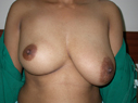 Asymmetric breast surgery before
