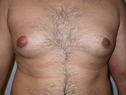 before male breast enlargement