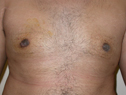 after male breast enlargement