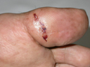 diabetic foot after surgery