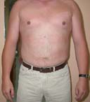 after liposuction abdomen surgery