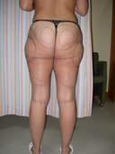 before liposuction thigh
