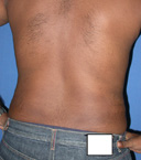 after liposuction waist